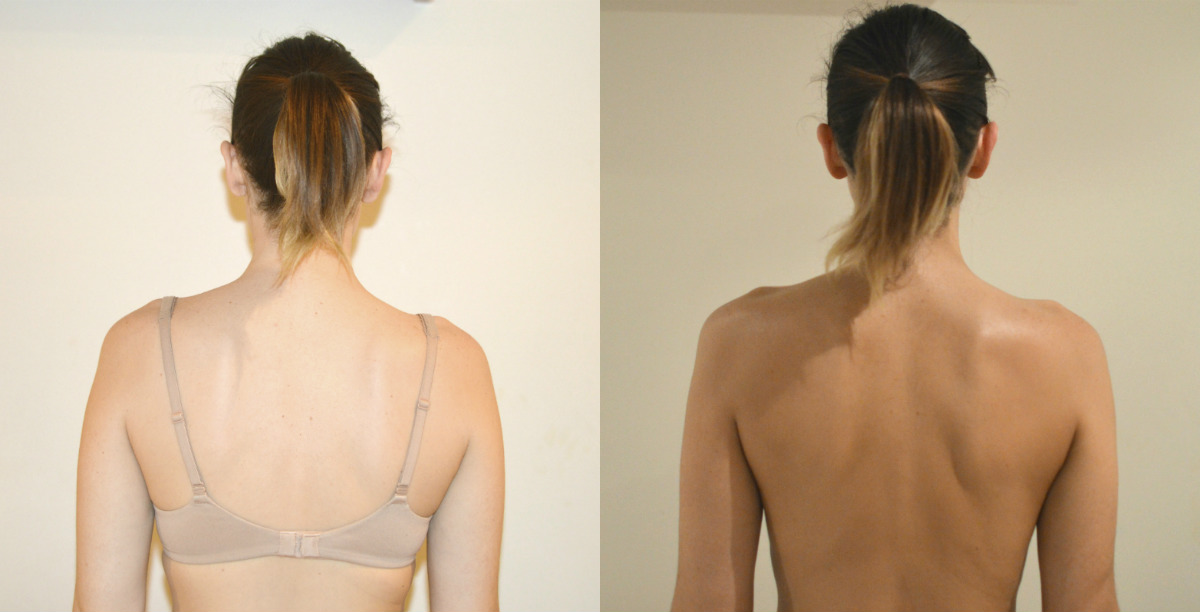 The Tan Before and after